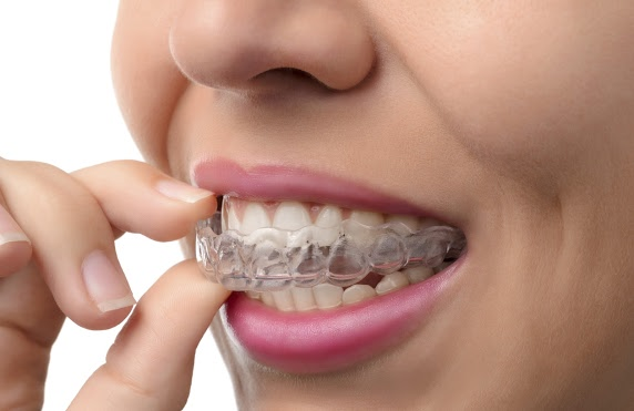 Woman Removing Her Invisalign Aligners